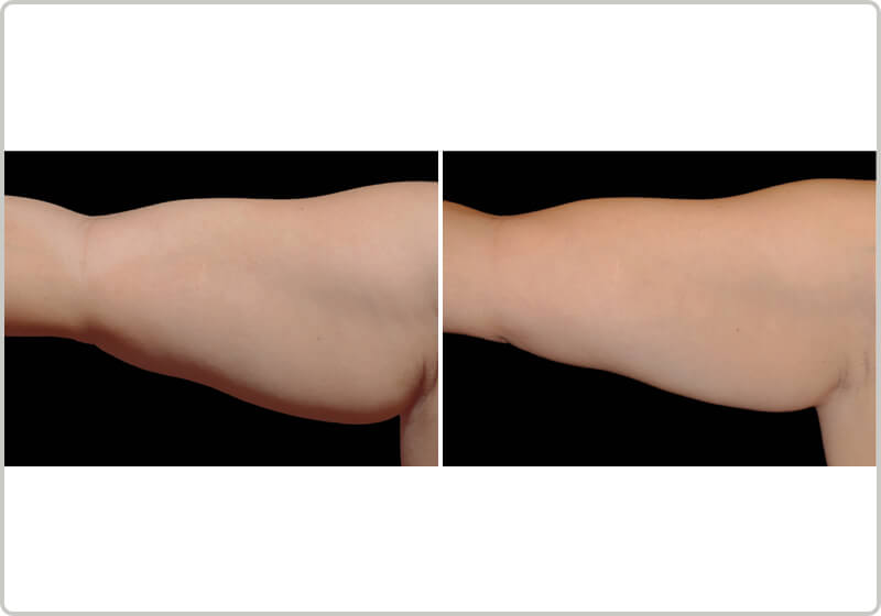 A patients upper arm before and after the treatment demonstrating fat-loss