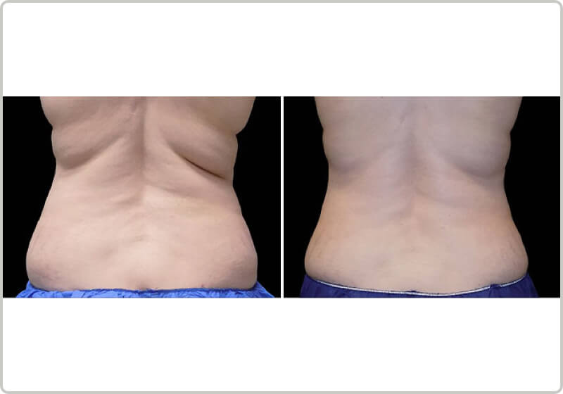 A patients back before and after the treatment demonstrating fat-loss