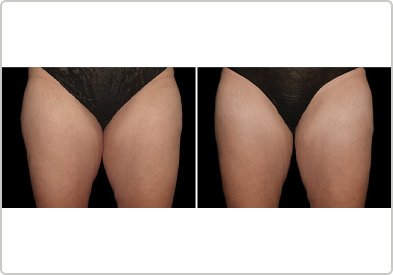 A patients thighs before and after the treatment demonstrating fat-loss