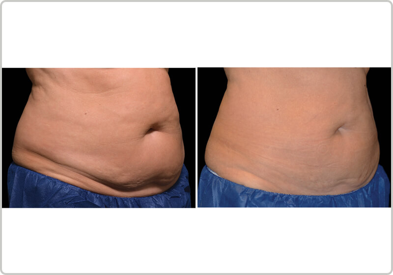 A patients stomach before and after the CoolSculpting treatment demonstrating fat-loss