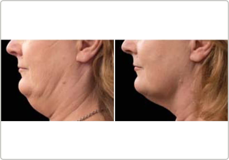 A patients chin before and after the CoolSculpting treatment demonstrating fat-loss