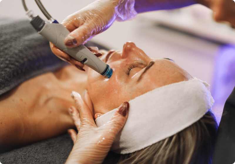 Lady receiving a Hydrafacial treatment on her cheeks