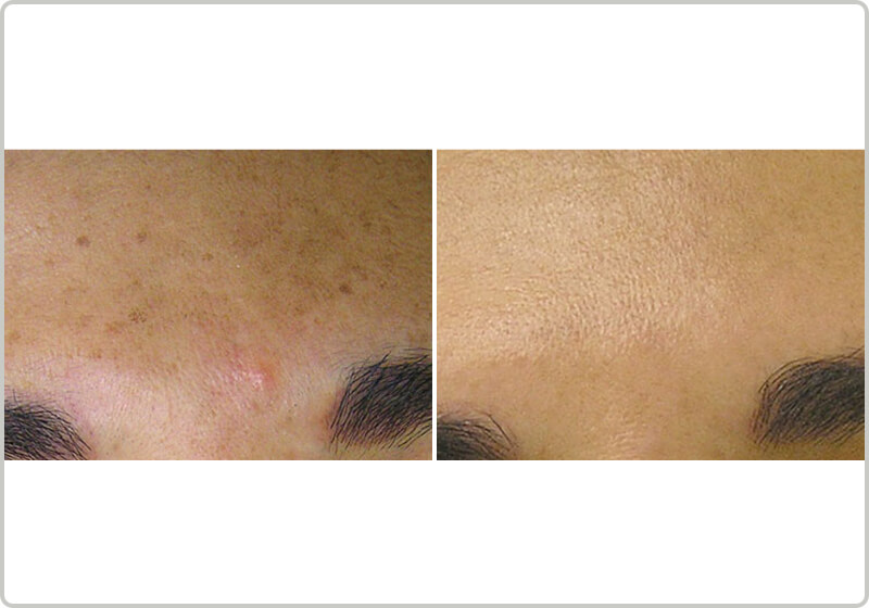 Before and after treatment of brown skin spots