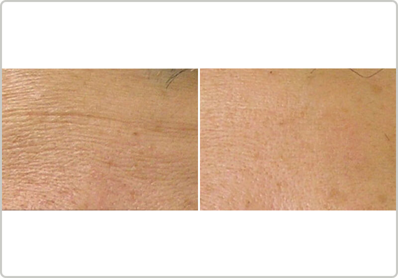 Before and after treatment of fine lines