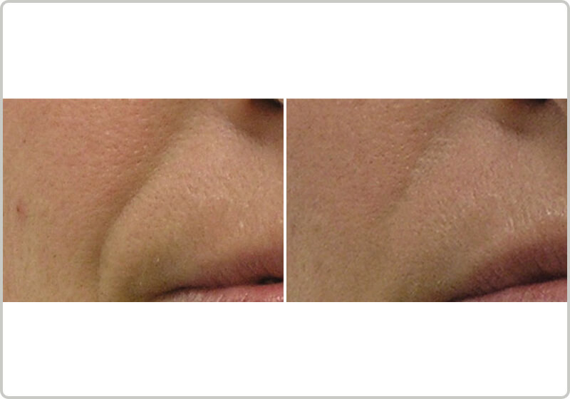 Before and after treatment of nasolabial folds