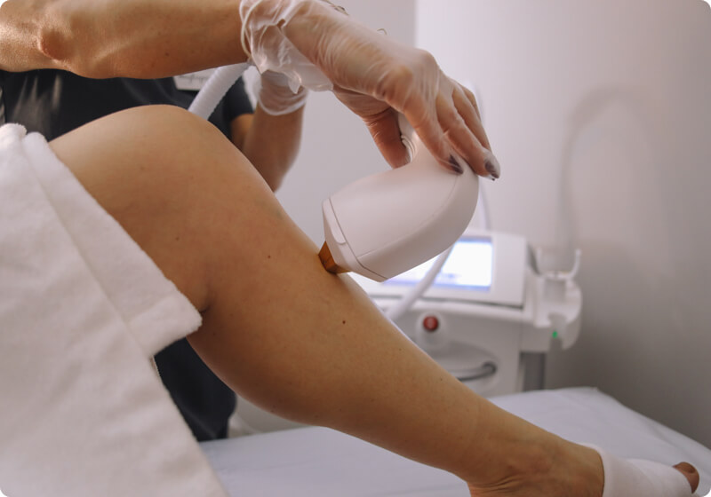 Therapist performing laser hair removal on a leg
