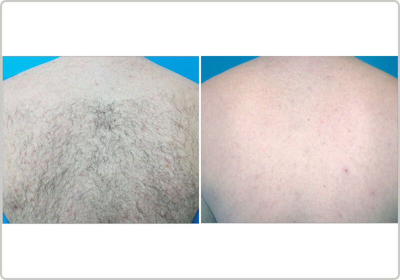 Laser Hair Removal Treatment Remove Unwanted Body Hair Spa810