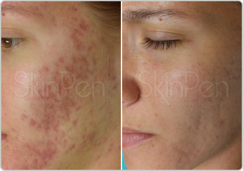 Before and after treatment of mirconeedling acne