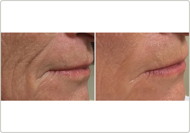 Before and after treatment of mirconeedling nasolabial folds