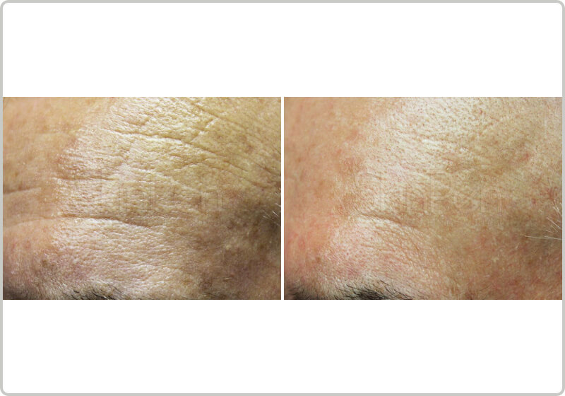Before and after treatment of mirconeedling fine lines