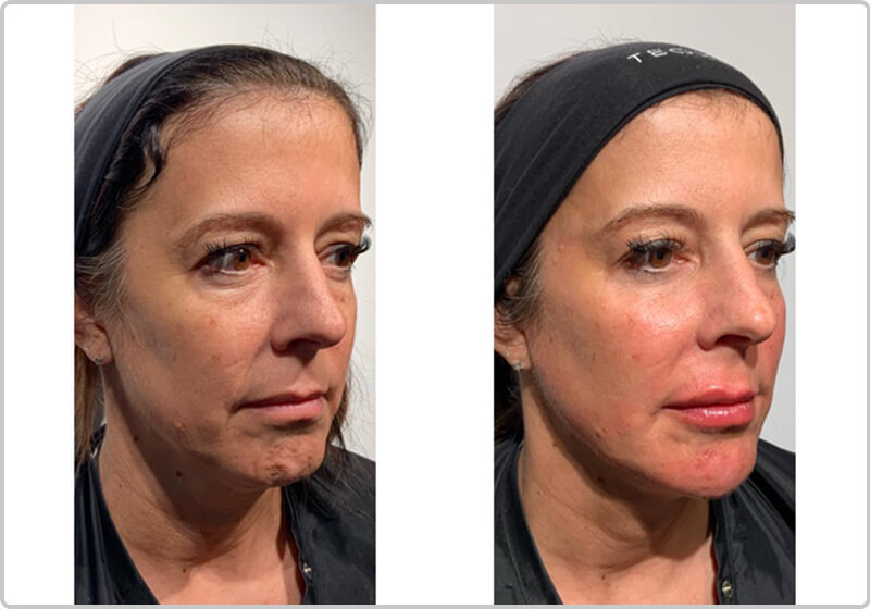Before and after pictures of a patient