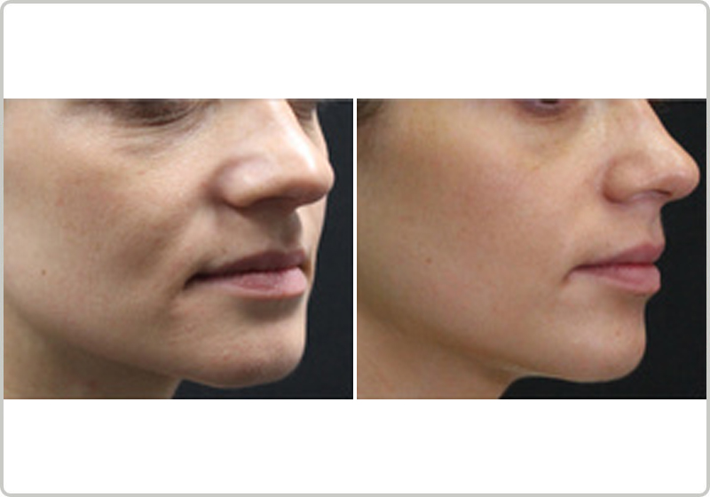 TriBella treatment before and after