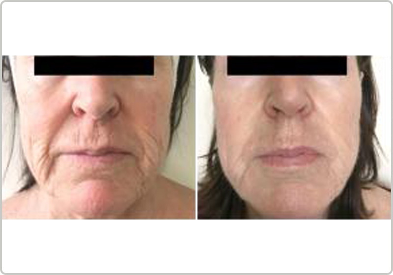 TriBella before and after
